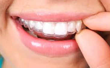 East Ridge Dental Invisalign Services